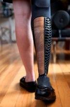 modern prosthetic