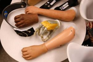 standard prosthetics